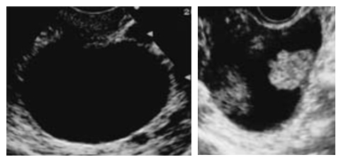 良性 卵巣 腫瘍